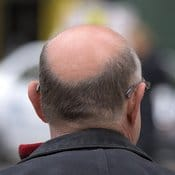 Homme d'une cinquantaine d'année vu de derrière sur son crane dégarni. Il souffre d'alopécie masculine (calvitie).